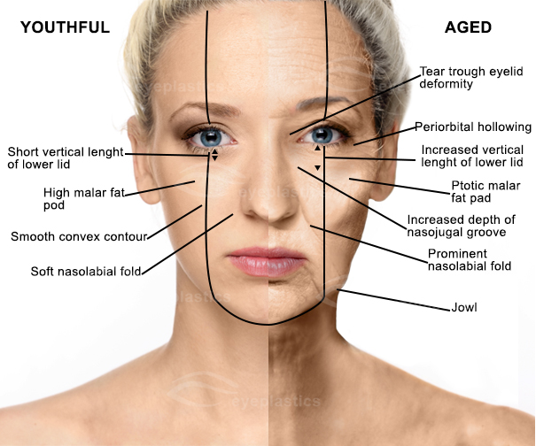 mid face aging face | Face lift | Facelift